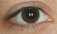 A Guide to Glaucoma (Part 1) Care Glaucoma