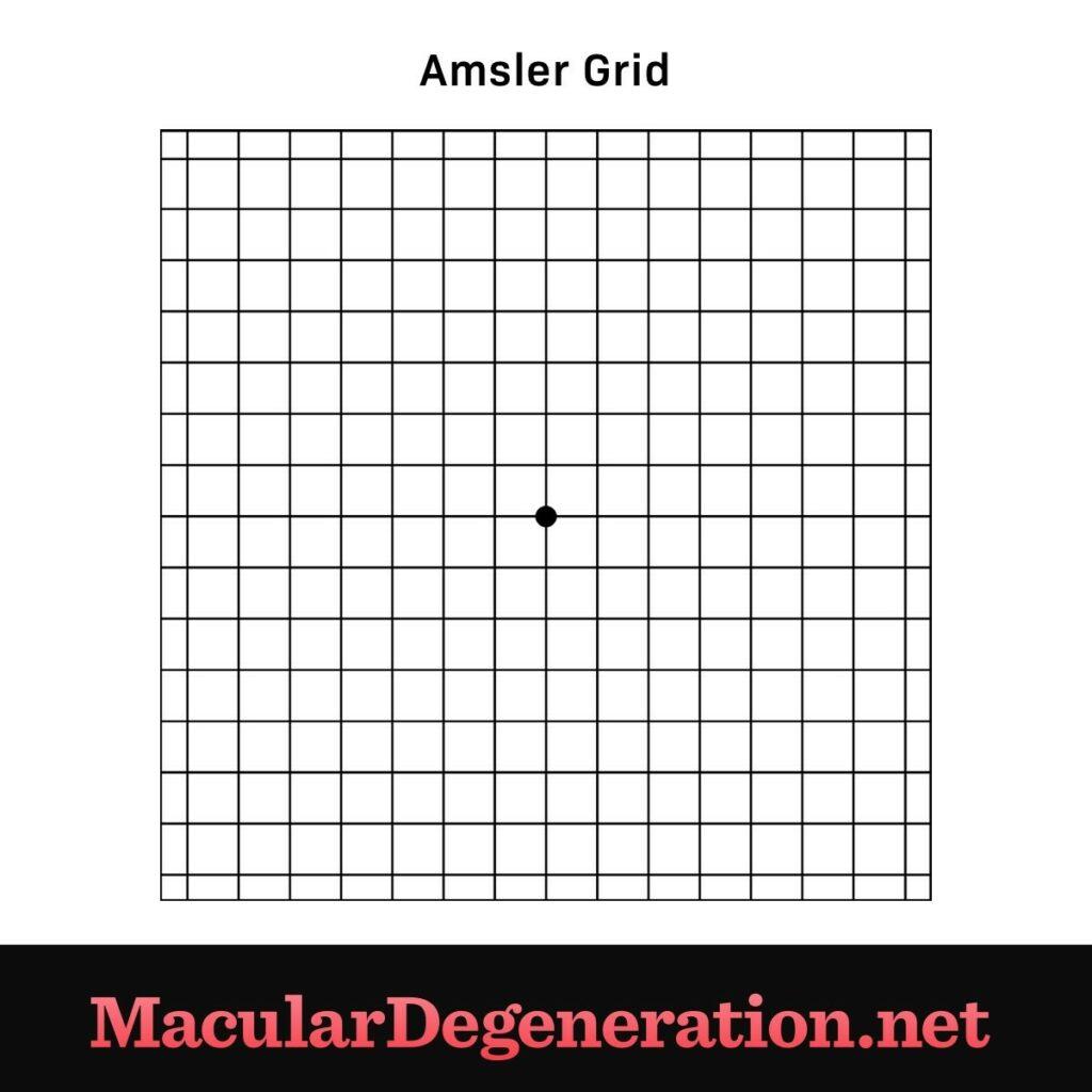 Vision Tests: Visual Acuity Test and Amsler Grid Uncategorized